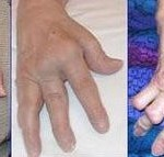Arthritis - A Common Problem of Aged Persons