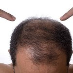 Natural Remedies for Male Hair Loss