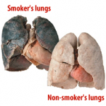 Smoking and Its Effects on Body