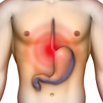 An Insider View on Acid Reflux Definition