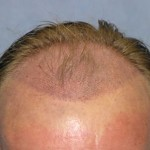 Hair Loss Diseases and Hair Transplant Methods