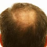 The Pro's and Con's of Hair Transplants