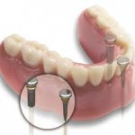 Dental Implants the Best Option for the Replacement of Lost Tooth