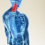 About Cervical Pain