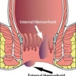 Hemorrhoid General Info and Treatment Options