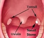 How to Remove Tonsil Stones Naturally