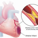 About Coronary Ischemia