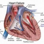 Ischemic heart disease 150x150 Health Concerns for the Elderly