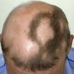 Alopecia Areata Treatment – Think and Choose