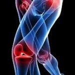 Powerful Synflex and Relieving Joint Pains