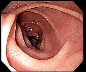 English: Endoscopic image of duodenum in indiv...
