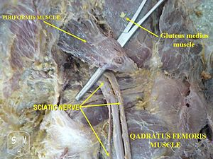English: Sciatic nerve