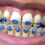 Basic Tips for Maintaining Your Braces