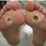 Diabetic foot ulcers 150x150 Is Your Toddler Affected by Yeast Infection?