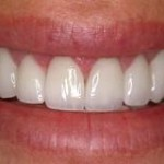 The Truth about Porcelain Veneers