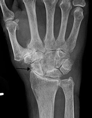 English: Severe osteoarthritis and osteopenia ...