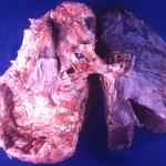 The 4 Types of Mesothelioma