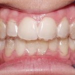 Benefits of Invisalign and Why Should You Consider It?