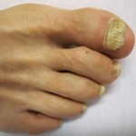 Treating Toenail Fungus In The Simplest Possible Way