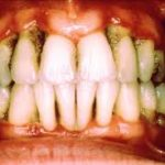 5 Signs That You May Have Periodontal Disease