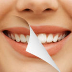 5 Things to Note Before Getting Your Teeth Whitened