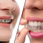 Invisalign for Children: An alternative to painful braces